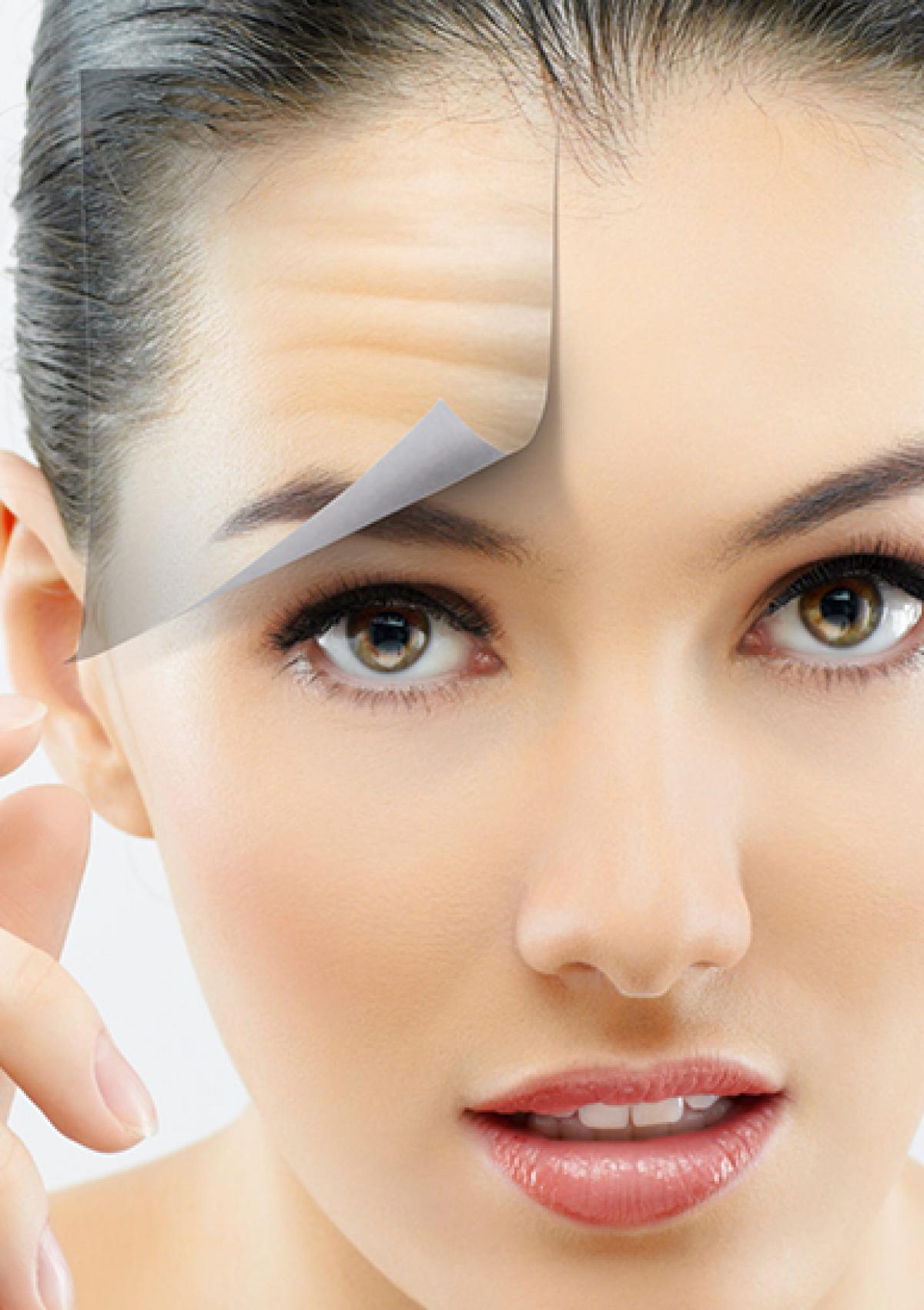 Hình ảnh khách hàng thẩm mỹ nhấn mí - cắt mắt