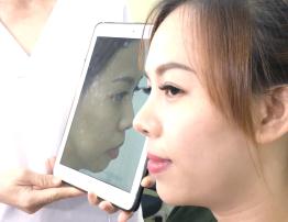 Khách hàng Nâng mũi - Đặt cằm tại Bệnh viện Thẩm mỹ Ngọc Phú - BenhVienNgocPhu.Com