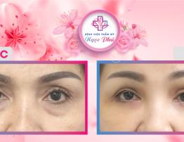 Cắt mắt mí dưới 4 in 1 giúp mắt trẻ đẹp - BenhVienNgocPhu.Com