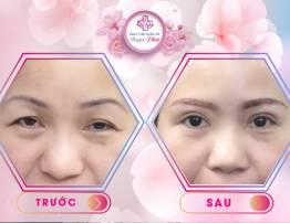 Cắt mắt droopy - giải pháp cho đôi mắt tươi trẻ - BenhVienNgocPhu.Com