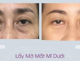 Bags Under Eyes Removal Surgery - BenhVienNgocPhu.Com