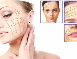 Căng da mặt chỉ Collagen - BenhVienNgocPhu.Com