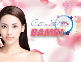 Cắt mắt Bambi - Mắt tươi trẻ - Đẹp rạng ngời - BenhVienNgocPhu.Com