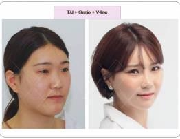 Hình ảnh khách hàng cắt gọt xương hàm - BenhVienNgocPhu.Com