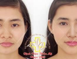 Hình ảnh khách hàng thẩm mỹ nhấn mí - cắt mắt - BenhVienNgocPhu.Com