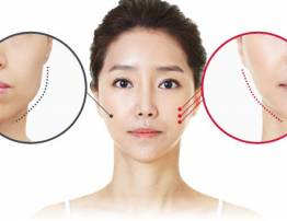 How to feel more secure about beauty enhancement with fillers? - BenhVienNgocPhu.Com