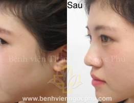 SAFE SLINE RHINOPLASTY FOR WOMEN - BenhVienNgocPhu.Com