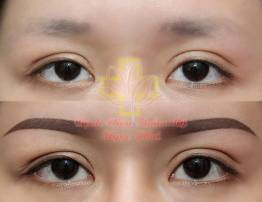 Hình ảnh khách hàng phun xăm thẩm mỹ - BenhVienNgocPhu.Com