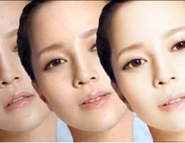 Liệu trình trắng sáng da 3D công nghệ mới - BenhVienNgocPhu.Com