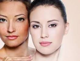 Melasma Treatment By High Technology of Elight Laser - BenhVienNgocPhu.Com