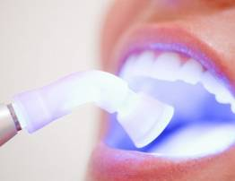 Bleaching of teeth with plasma - BenhVienNgocPhu.Com