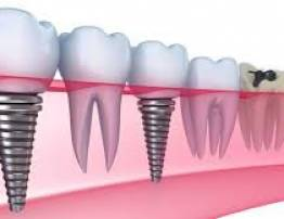 Dental implant to restore chewing function - BenhVienNgocPhu.Com