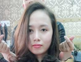 Hình ảnh khách hàng thẩm mỹ mũi - BenhVienNgocPhu.Com