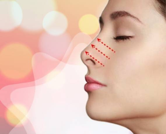 Sline Rhinoplasty - The Rhinoplasty Technology For Comprehensive Beauty - BenhVienNgocPhu.Com