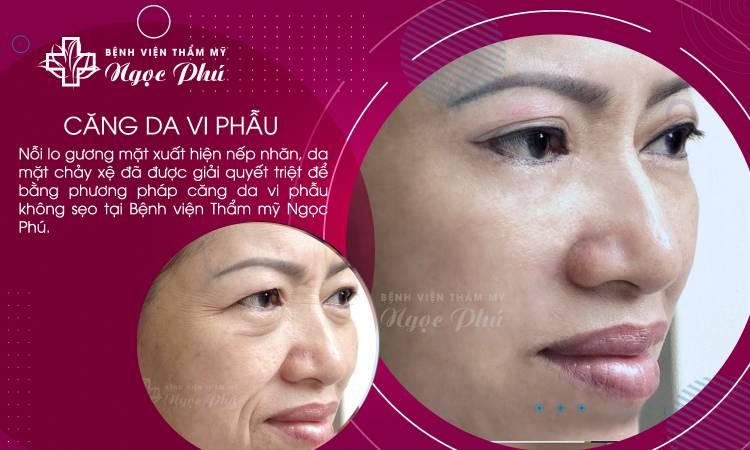 Căng da mặt vi phẫu