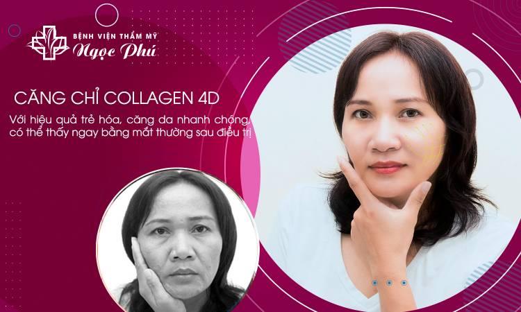 Căng da mặt chỉ Collagen 4D