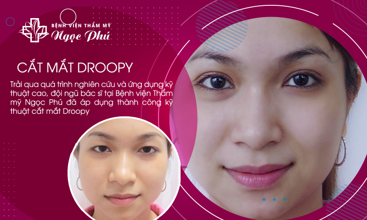 Cắt mắt Droopy