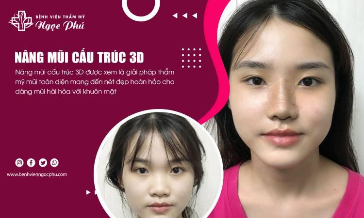 Nâng mũi cấu trúc 3D