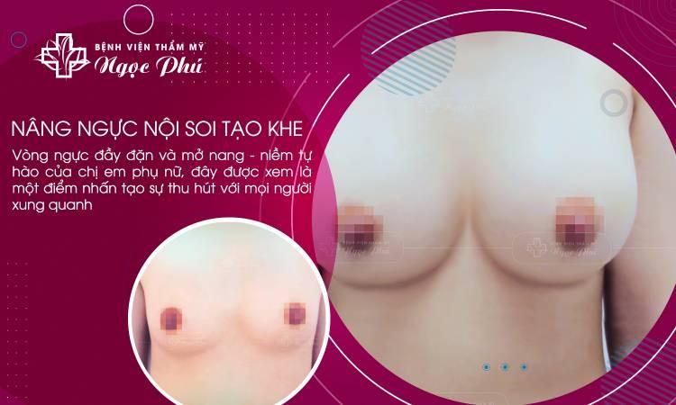 Nâng ngực nội soi tạo khe