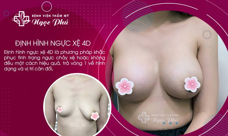 Định hình ngực xệ 4D