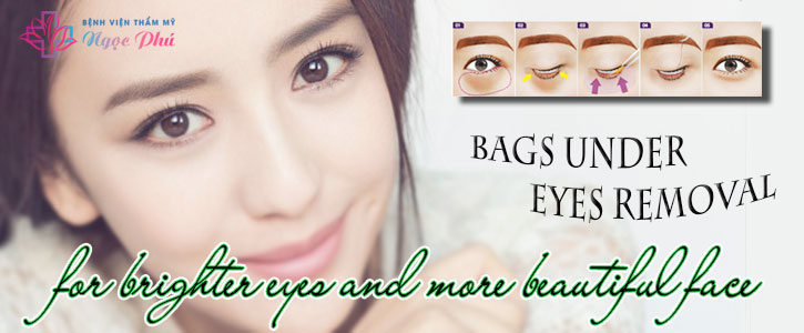 BAGS UNDER EYES REMOVAL SURGERY