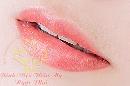 Phun môi hồng PRP-5